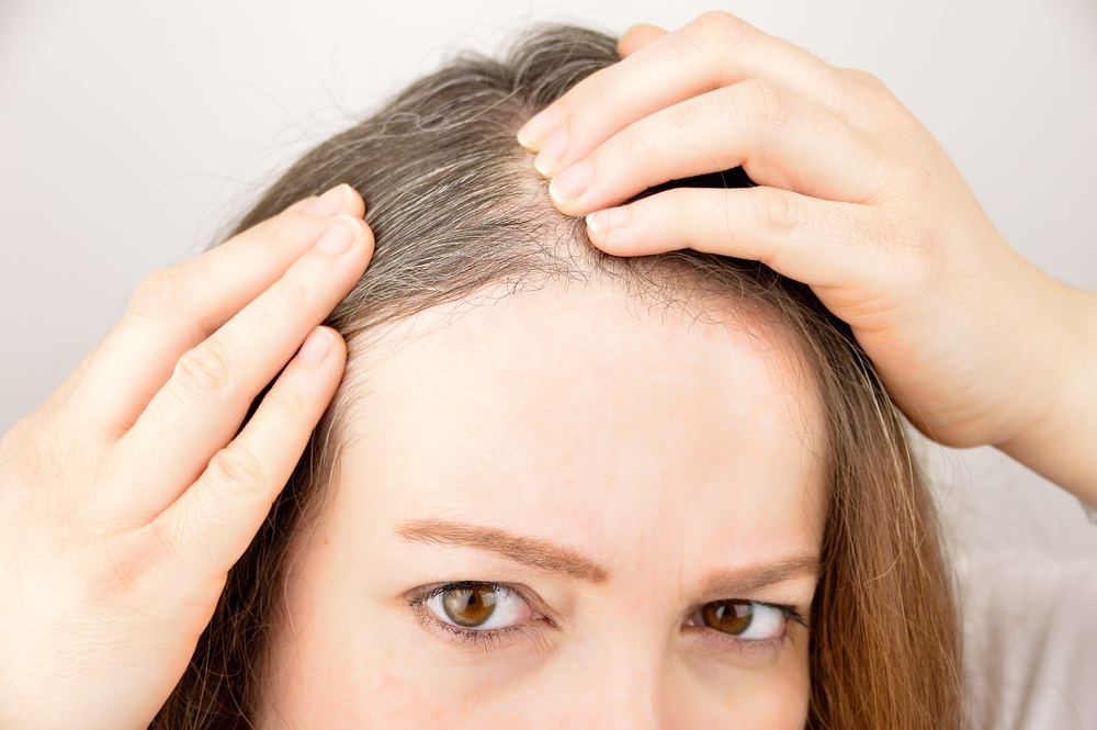 natural-home-remedies-to-cover-your-grey-hair