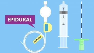 know-all-about-epidural