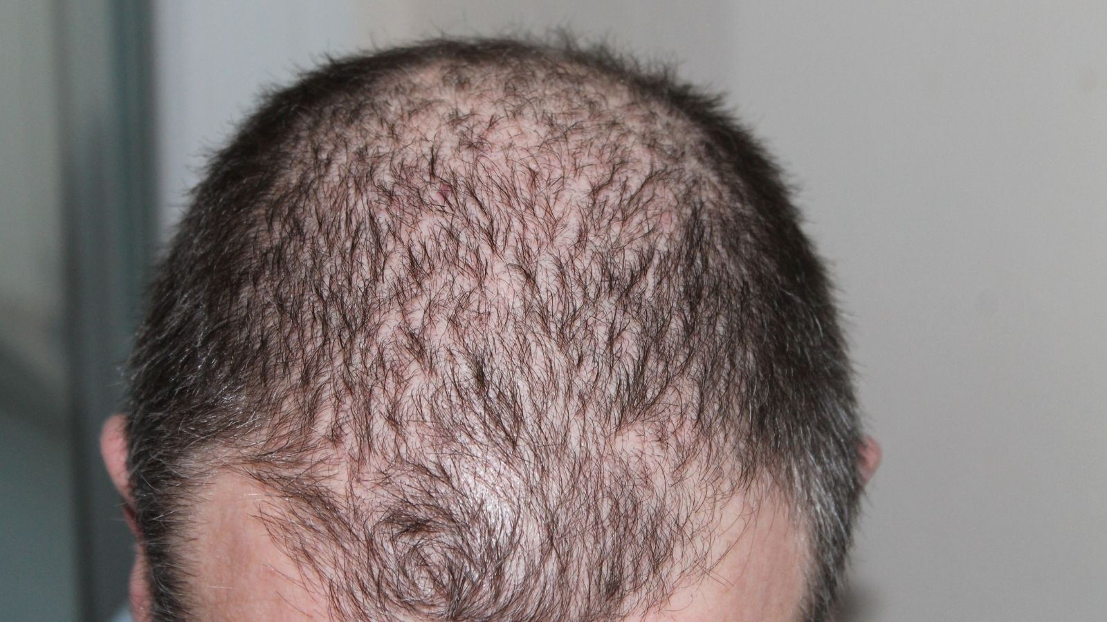 best-foods-to-help-prevent-hair-loss